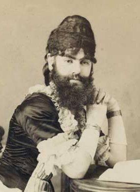 Анни Джонс (1860-1902) — одна из известнейших бородатых леди викторианской эпохи, выступавшая в цирке Барнума. Фотография 1879 года.