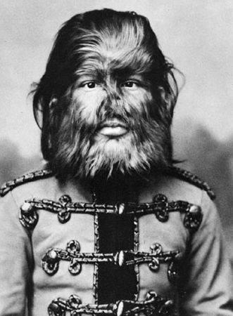 Фёдор Евтищев (1868-1904) — «мальчик с собачьей мордой», знаменитый актёр цирка Барнума.