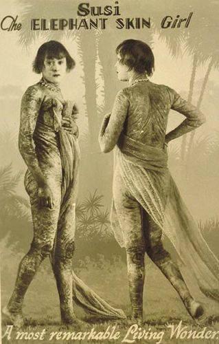 Сьюзи (1909-1975) — «девочка-крокодил». Ихтиоз придал её коже странную структуру и цвет; выступала она вплоть до 1967 года.