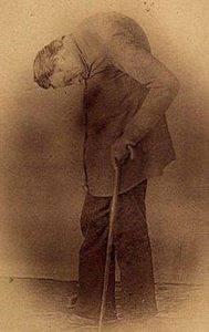 Леонард Траск, «удивительный инвалид» (1805–после 1860) стал демонстрировать себя на старости лет, чтобы прокормиться.