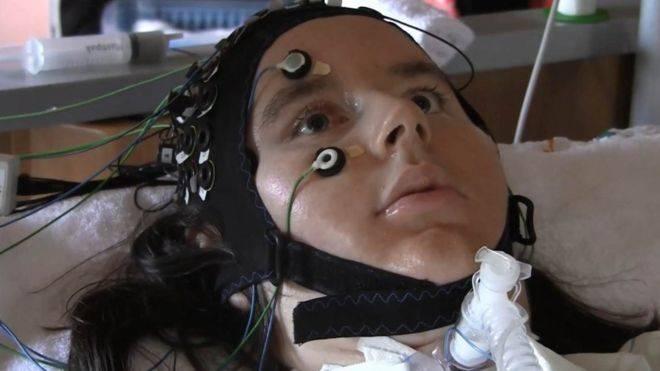Новый интерфейс помог «прочитать» мысли человека с синдромом изоляции