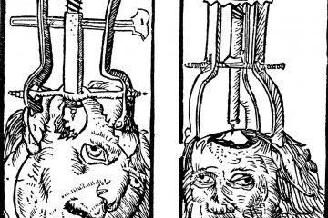 Бедлам, лоботомия и цепи: жуткая история психиатрии 29