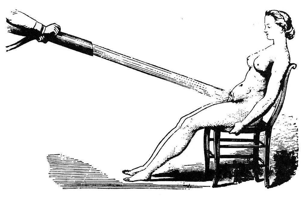 Бедлам, лоботомия и цепи: жуткая история психиатрии 32