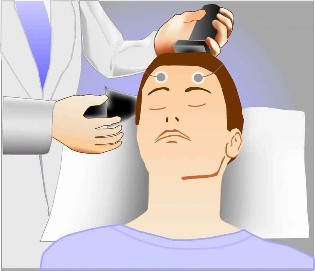 Бедлам, лоботомия и цепи: жуткая история психиатрии 19